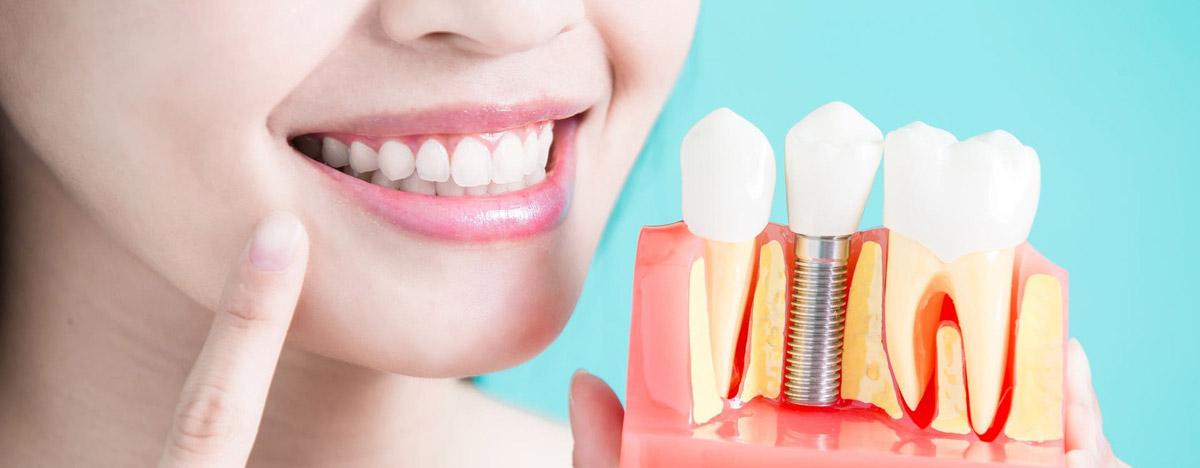 Имплантация зубов Фрязино
